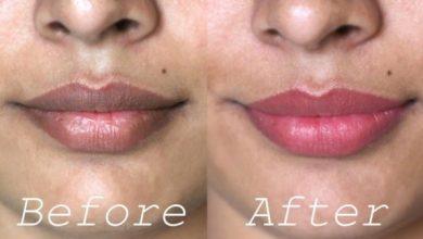 Photo of How you can Lighten a Dark Upper Lip