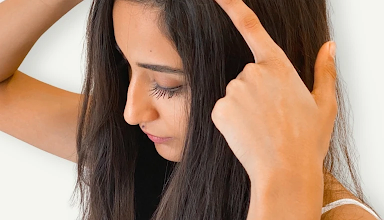 Photo of What is a Hair Patch? Treatment, Cost, Haircare, and Side Effects
