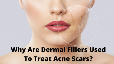 Photo of Why Are Dermal Fillers Used To Treat Acne Scars?